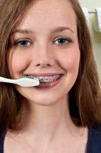 Brushing your new braces a minimum of 4 times a day is advised