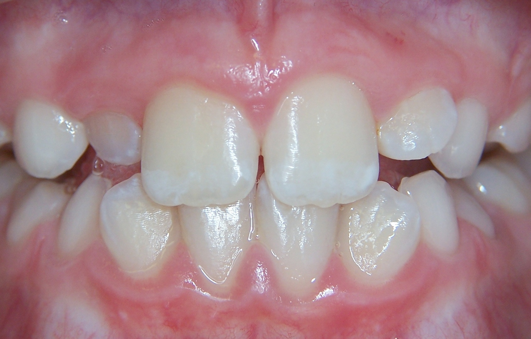 Young patient requiring orthodontic treatment at Smile101