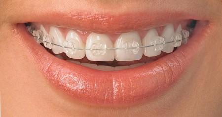 ceramic braces adult orthodontic treatments