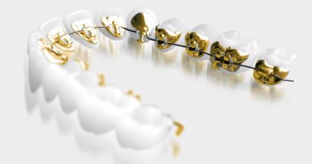 lingual braces adult orthodontic treatments
