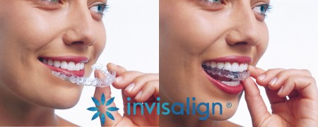 Invisalign clear trays