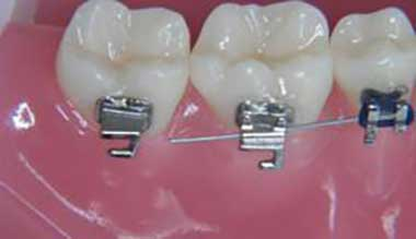 Dislodged wire on a fixed braces