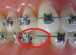 Broken bracket on fixed braces