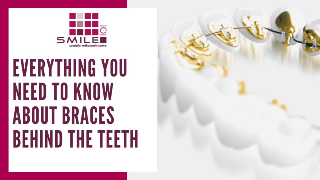 Everything you need to know about braces behind the teeth