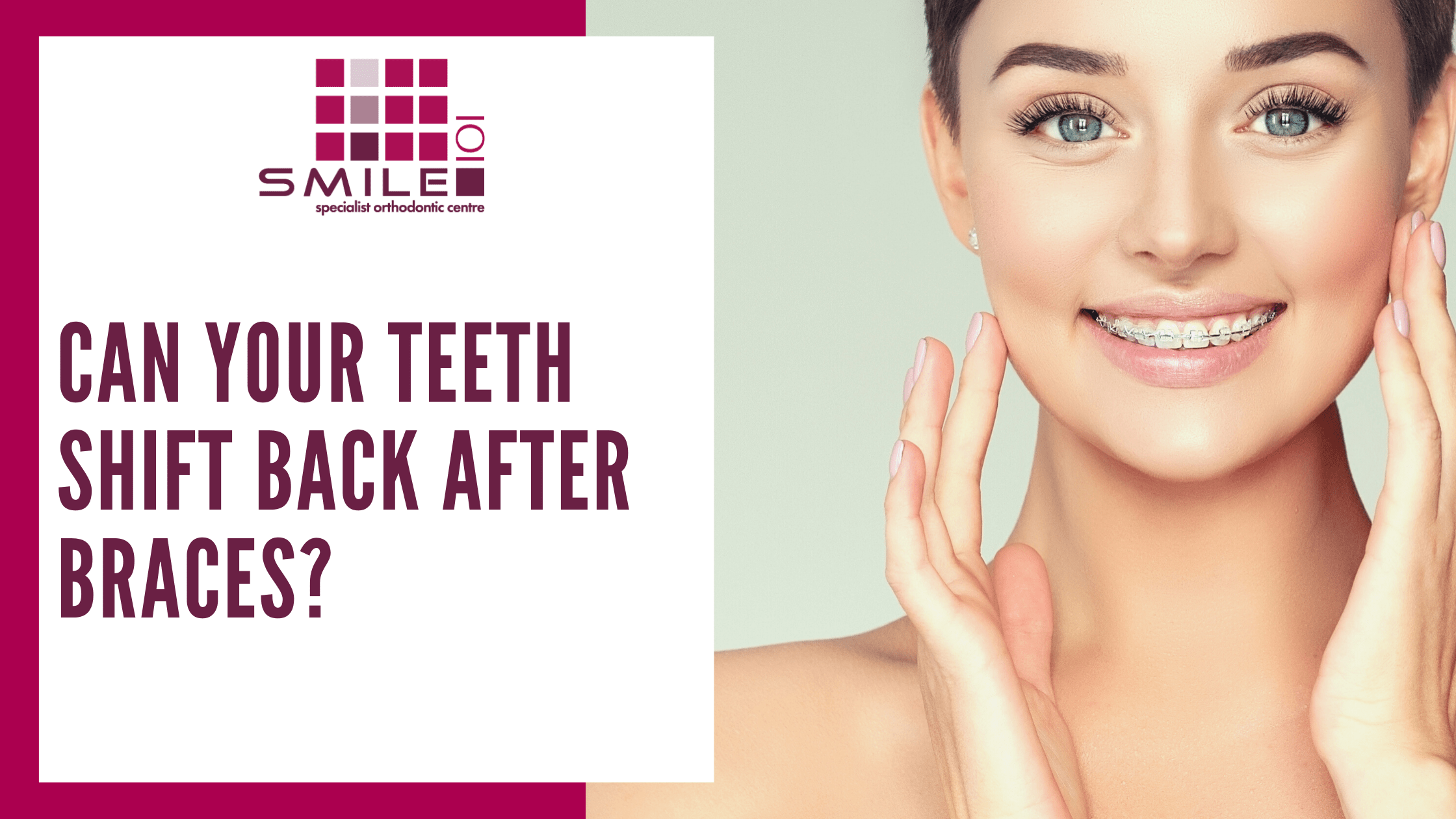 can your teeth shift after braces